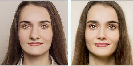 Rinoplastie, imagini înainte - după